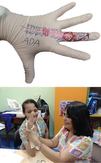 Trainees split into groups to practice making assistive devices for rehabilitation. In this photo, the extensor tendon for a finger is drawn on the hand as they learn about hand rehabilitation.