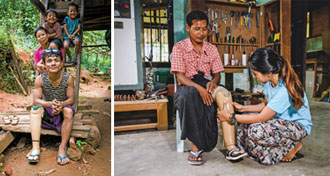 About 300 landmine victims are expected to get artificial limbs by 2020 under a collaborative program between Taipei City-based Eden Social Welfare Foundation and The Leprosy Mission Myanmar. (Photos courtesy of The Leprosy Mission Myanmar)